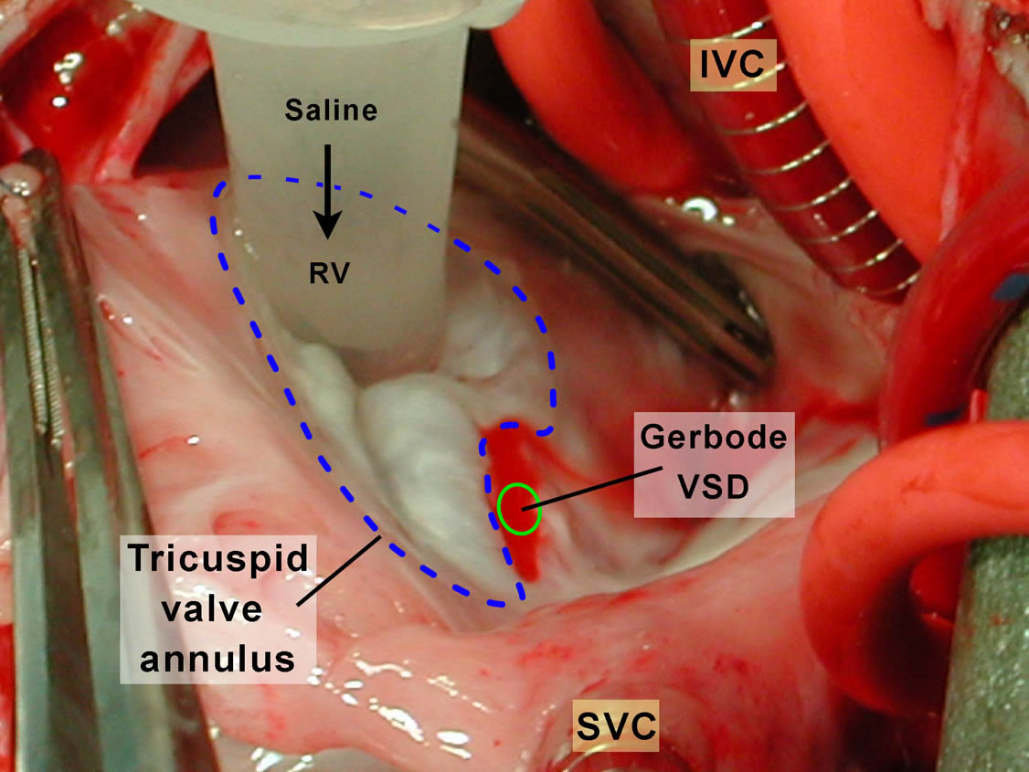 the gerbode defect a ventriculoatrial defect ctsnet