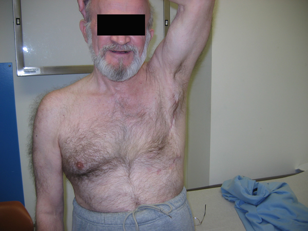 Chest Wall Invasion from Metastatic Chordoma | CTSNet