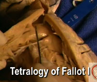 Video 4 - Tetralogy of Fallot I