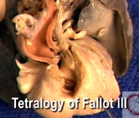 Video 6 - Tetralogy of Fallot III