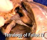 Video 7 - Tetralogy of Fallot IV