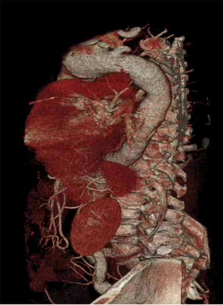 The frozen elephant trunk technique using a hybrid for Aortic aneurysm with mural thrombus
