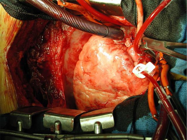 repair of an anterior postinfarction ventricular septal