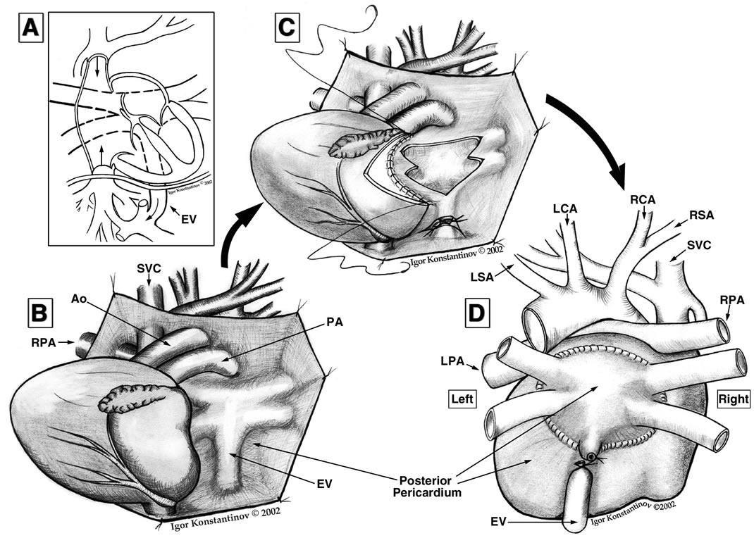 u0026quot sutureless u0026quot  pulmonary vein stenosis repair