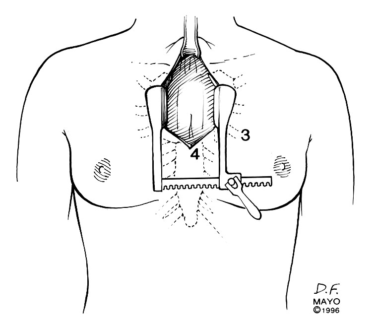 what is a sternum