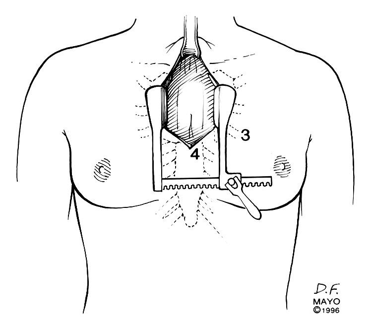 sternal splitting approaches to thymectomy for myasthenia