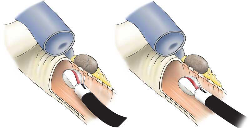 ultrasound guided needle biopsy parotid gland