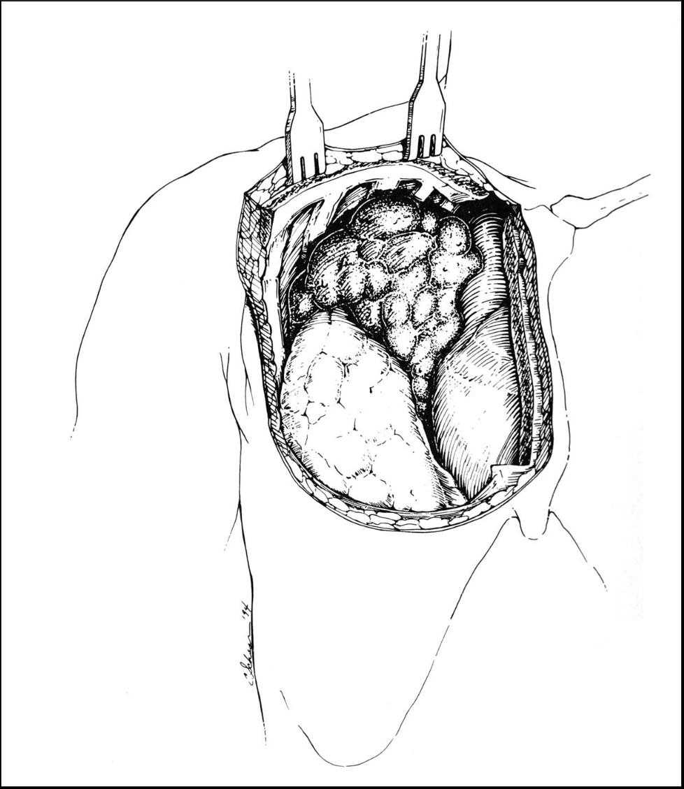 Surgical Management Of Primary Mediastinal Germ Cell Tumors Ctsnet