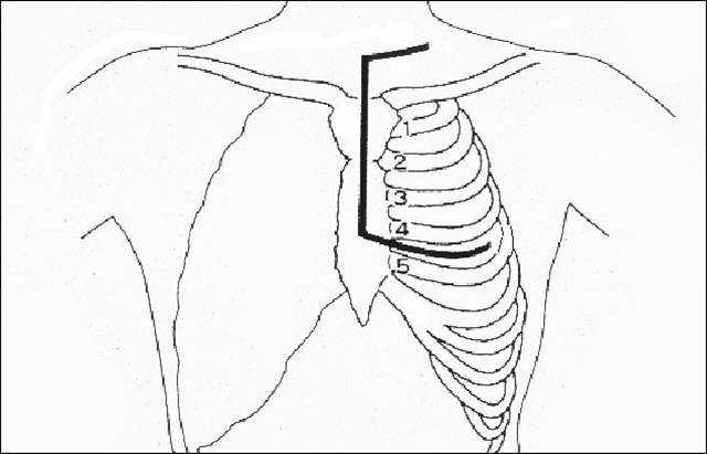 Clamshell Thoracotomy