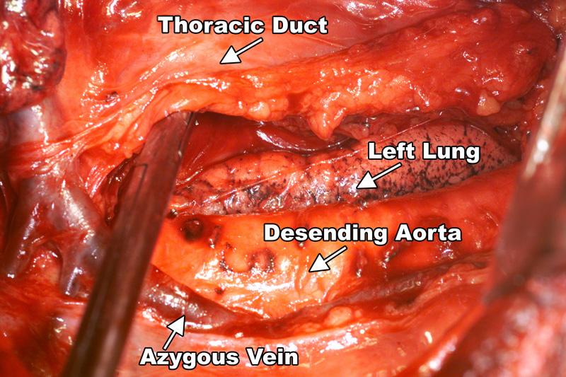 Lymph Node Dissection Procedure