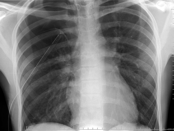 Thoracoscopic Management Of Spontaneous Pneumothorax Ctsnet