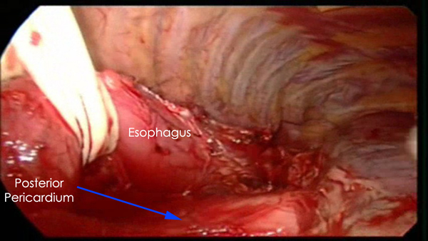 Figure 5. Access to posterior pericardium. Figure 6a. Long curved ...