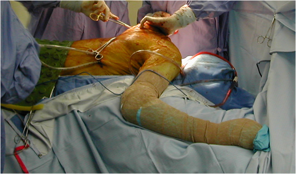 Thoracotomy for Exposure of the Spine | CTSNet