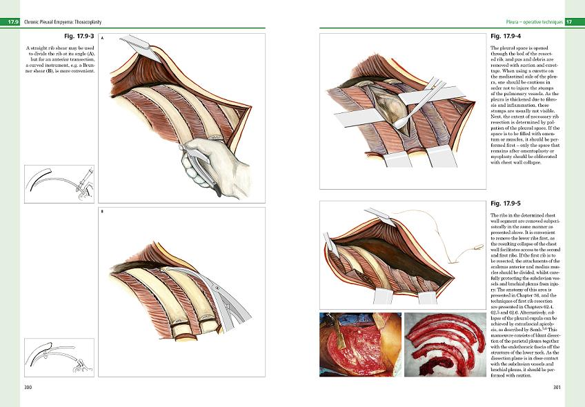 ests textbook of thoracic surgery free download