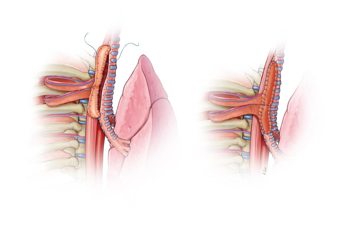 Multidisciplinary Management And Repair Of A Traumatic Posterior
