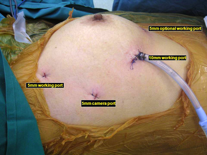Video Assisted Thoracoscopic Vats Thymectomy Ctsnet