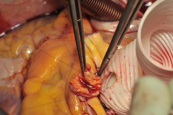 Composite Graft Replacement Of The Aortic Root Ascending
