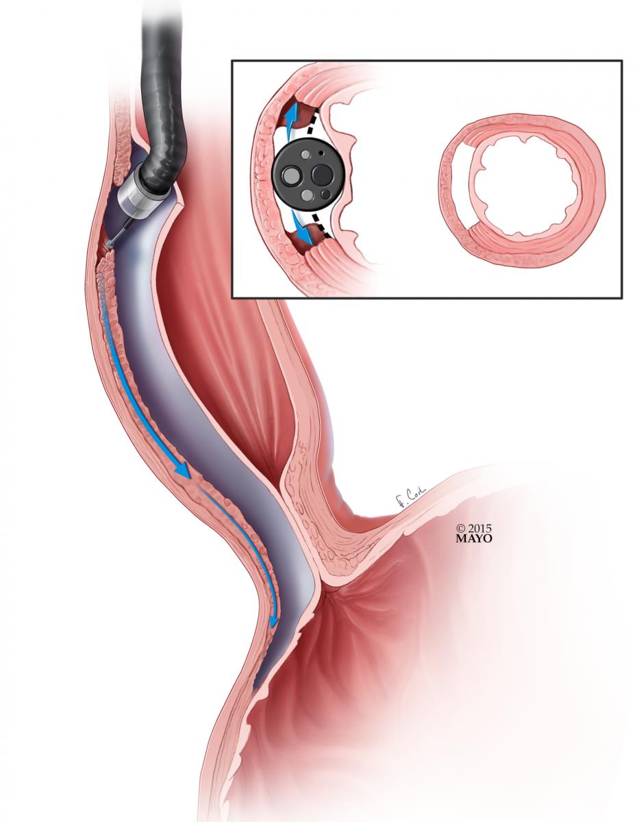 Peroral Endoscopic Myotomy (POEM) | CTSNet