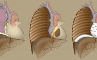 Extrapleural pneumonectomy