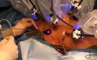 Robotic Mitral Valve Repair T. Sloane Guy, MD