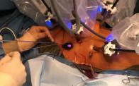Robotic Mitral Valve Repair T. Sloane Guy, MD