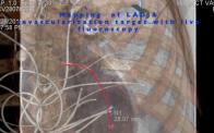 MICS CABG Live Intraoperative 3D Image Fusion