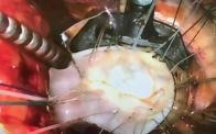 Minimally Invasive Mitral Exposure
